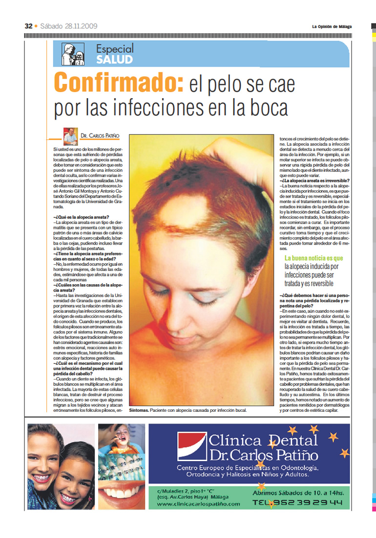 Implantes Dentales en Málaga